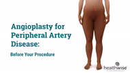 Angioplasty for Peripheral Arterial Disease