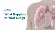 Asthma: What Happens in Your Lungs