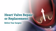 Heart Valve Repair or Replacement: Before Your Surgery