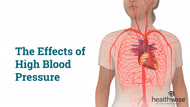 The Effects of High Blood Pressure
