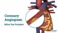 Coronary Angiogram: What Is it?