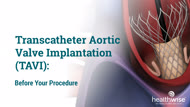 Transcatheter Aortic Valve Implantation (TAVI): Before Your Procedure