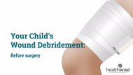 Your Child's Wound Debridement: Before Surgery
