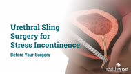 Urethral Sling Surgery for Stress Incontinence: Before Your Surgery