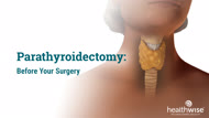 Parathyroidectomy: Before Your Surgery