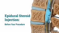 Epidural Steroid Injection: Before Your Procedure