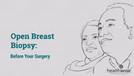 Open Breast Biopsy: Before Your Surgery